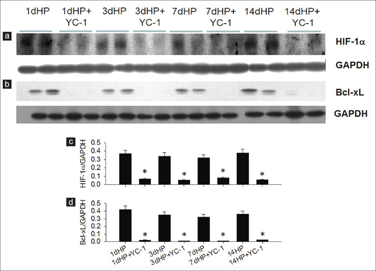 Figure 2: Effect of YC-1 on nuclear hypoxia-inducible factor-1α and total proteins of hepatic Bcl-xL expression in the rat livers. (a) One typical graph of YC-1 treatment on nuclear hypoxia-inducible factor-1α expression in response to different time frame of hypoxic preconditioning in the livers. (c) Statistic data of a. (b) One typical graph of YC-1 treatment on total proteins of Bcl-xL expression in response to different time frame of hypoxic preconditioning in the livers. (d) Statistic data of b. *<i>P</i> < 0.05 when compared to hypoxic preconditioning
